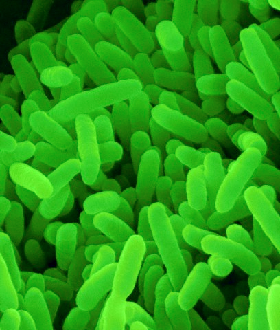 Types of Bacteria, Examples, Definition